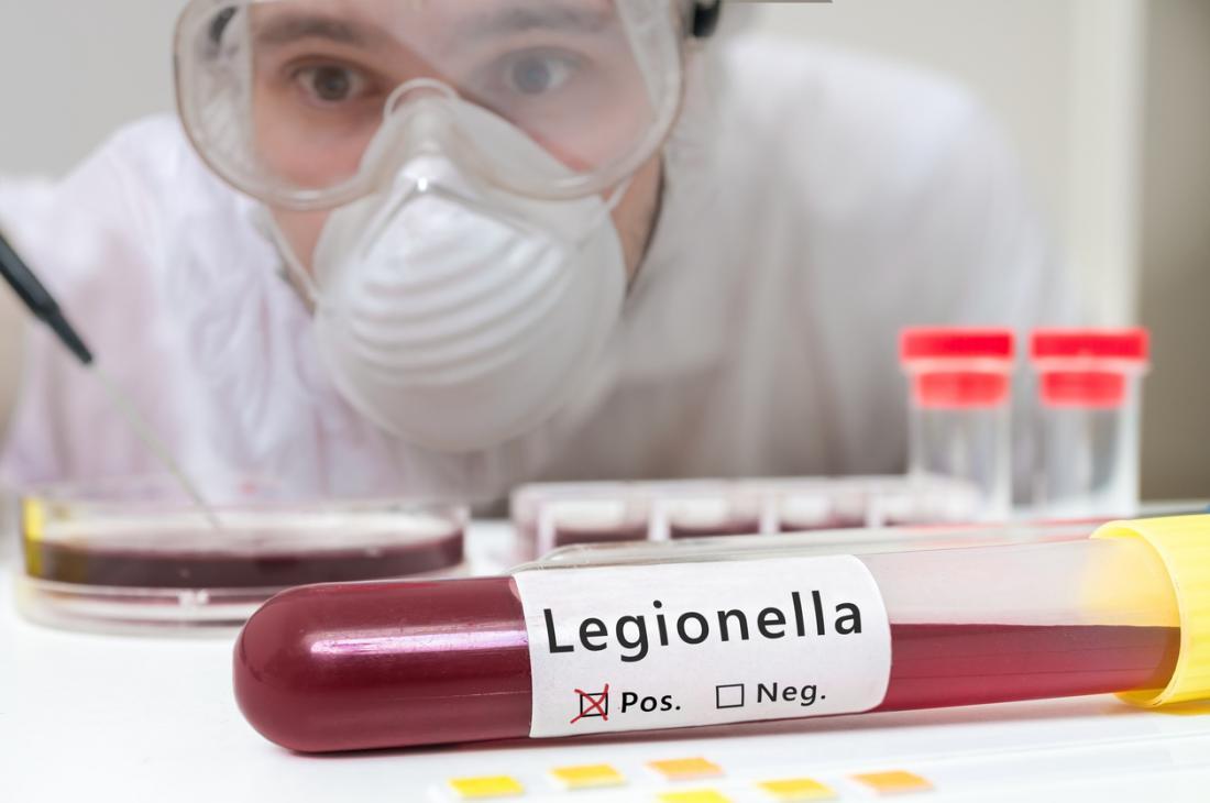 Choroba legionisty została po raz pierwszy uznana w 1976 r., Aw 2015 r. W Stanach Zjednoczonych potwierdzono 6000 przypadków.