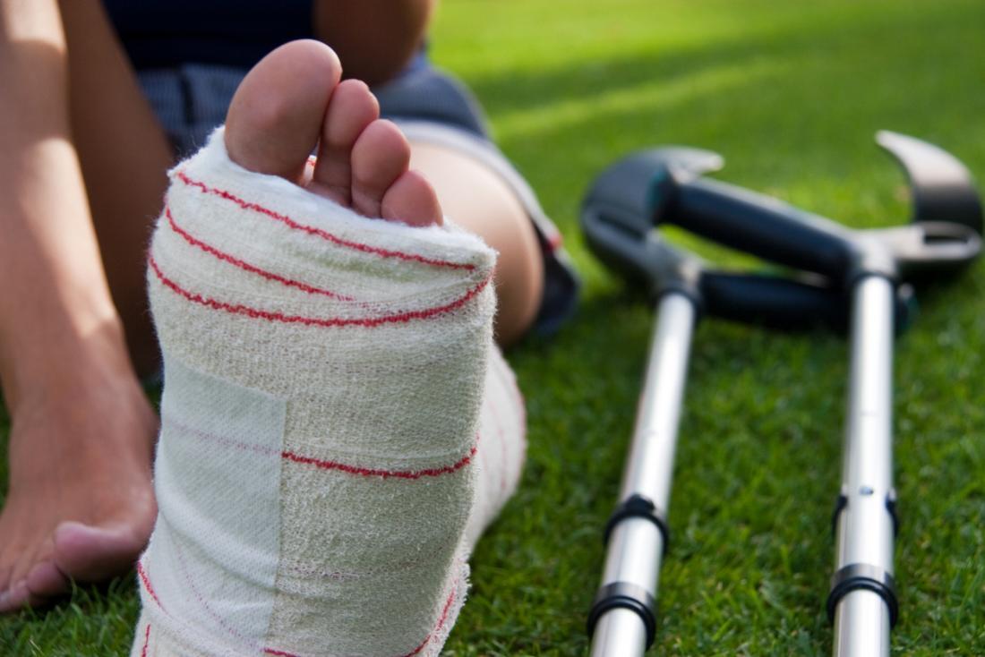 Topuk kırıkları: tipleri, belirtileri, tedavisi