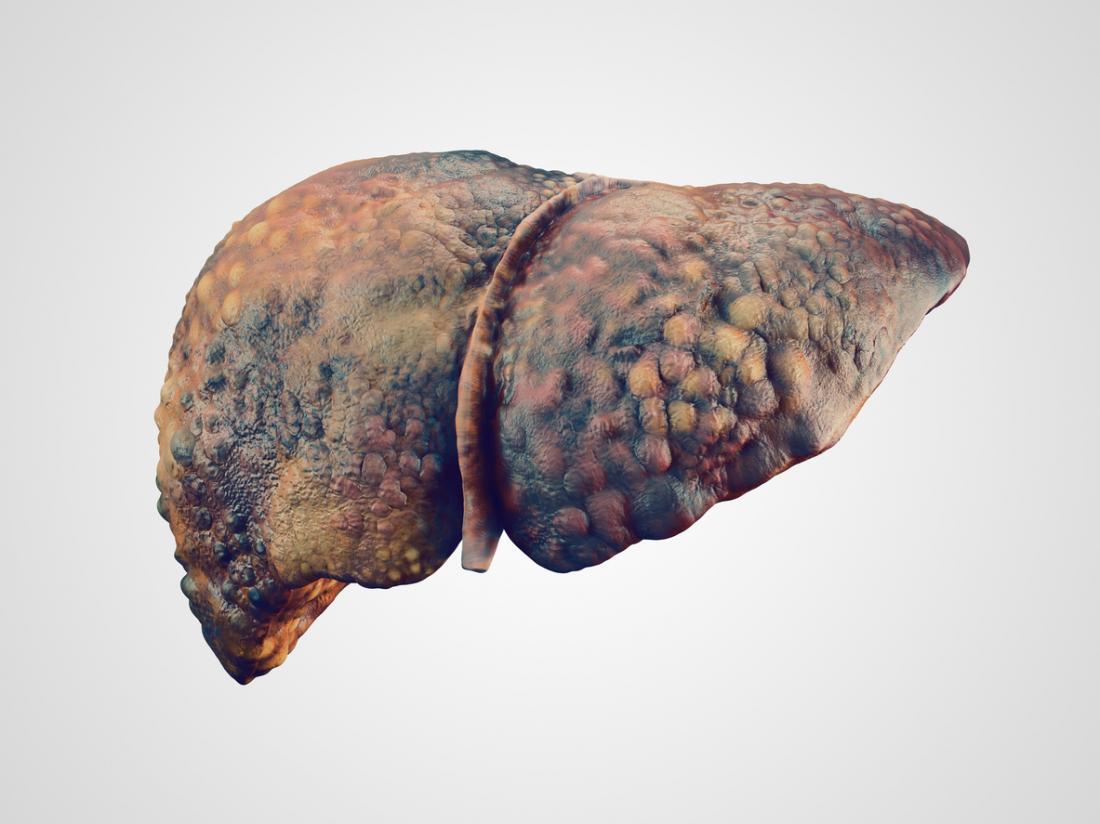 [illustrazione di un fegato malato]