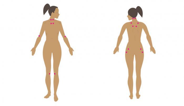 diagramme de points douloureux de la fibromyalgie