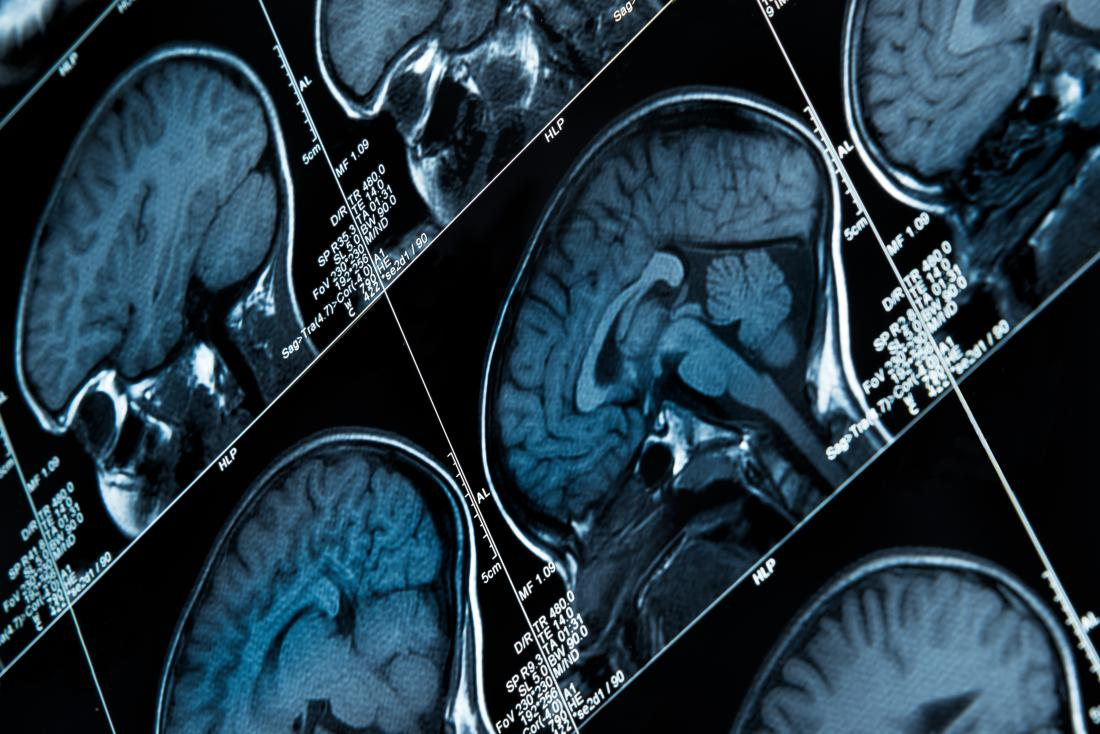 Scansioni MRI del cervello