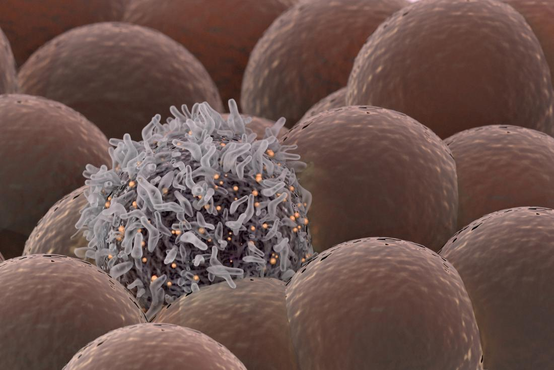 Cellule de cancer