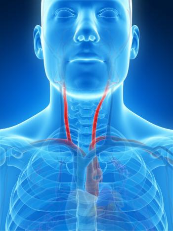 diagramma raffigurante le arterie carotidi