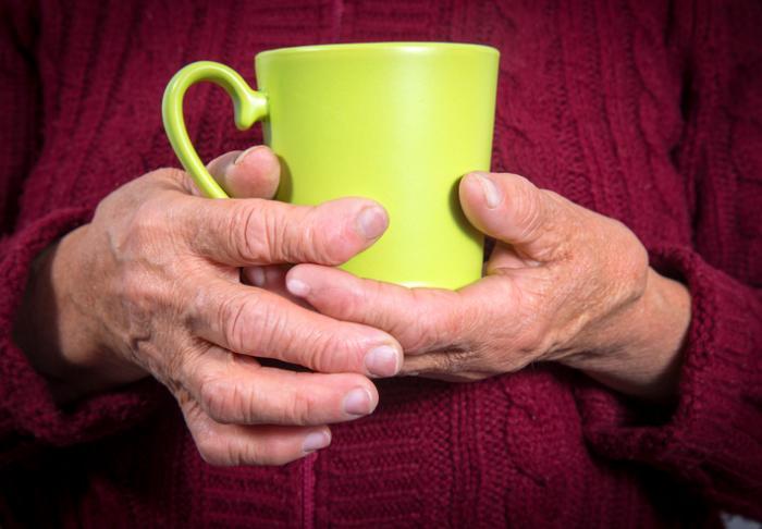 rheumatoid arthritic Hände, die einen Becher halten