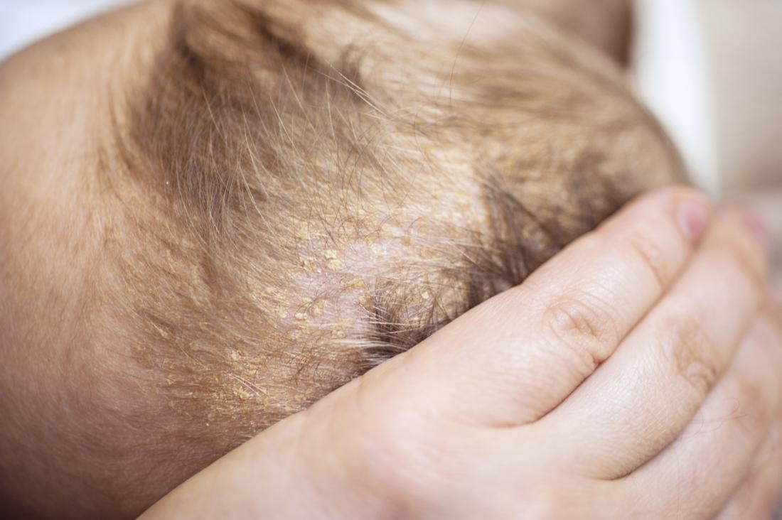 Viêm da tiết bã hoặc nắp nôi trên da đầu.