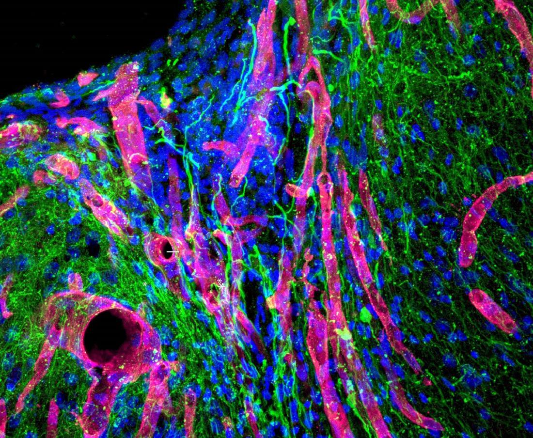 Photomicrographie de gel de course de cerveau