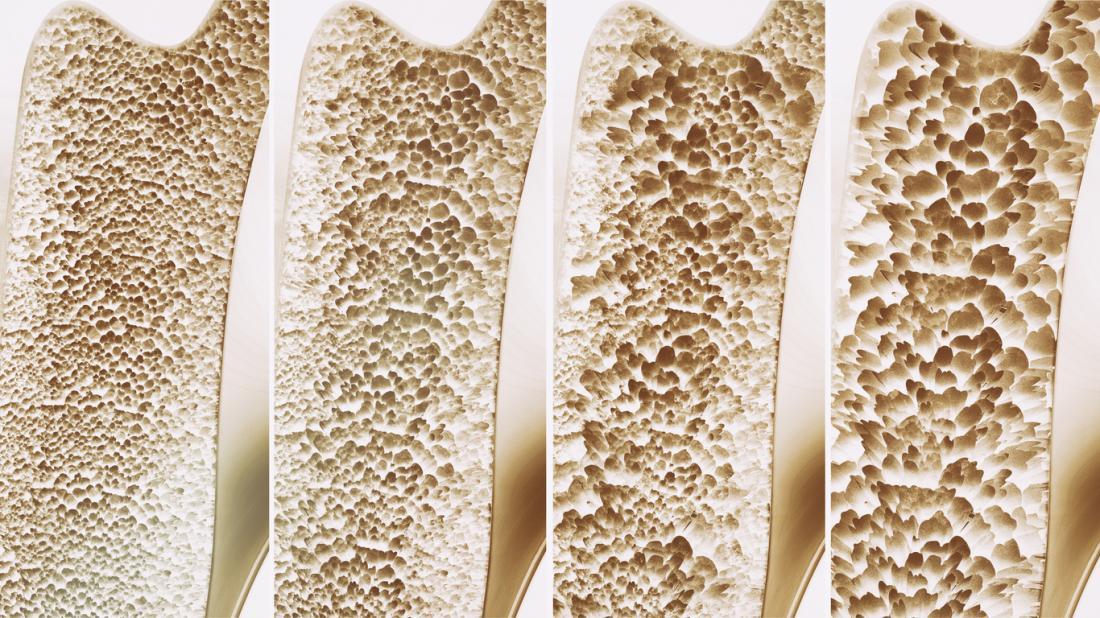 stadi di osteoporosi