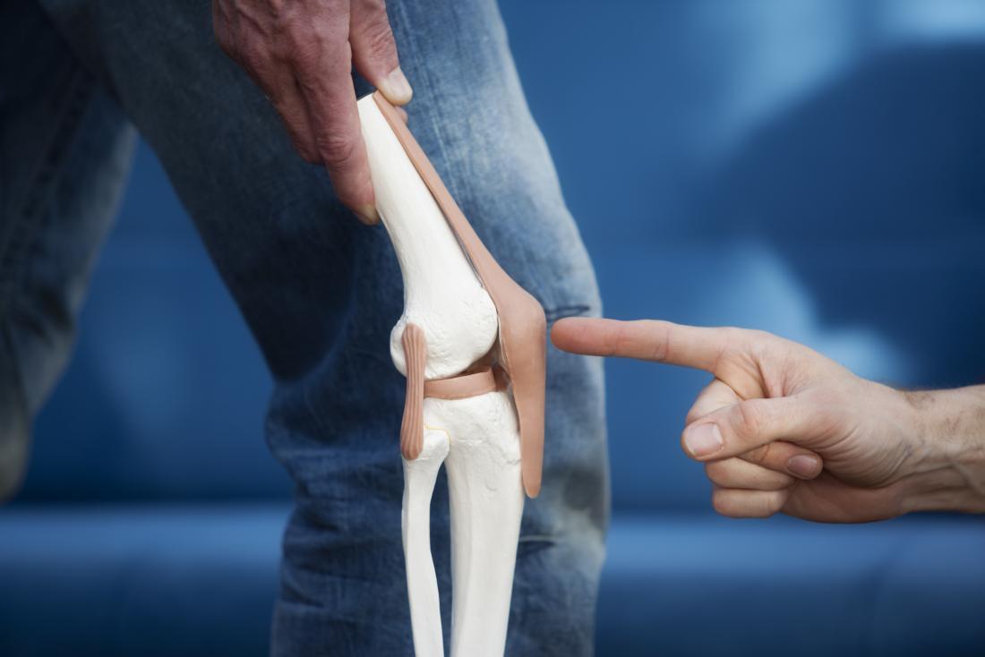 Tendinite patellaire démontrée par le modèle de la coiffe du genou avec le tendon rotulien pointé vers la jambe de la personne.