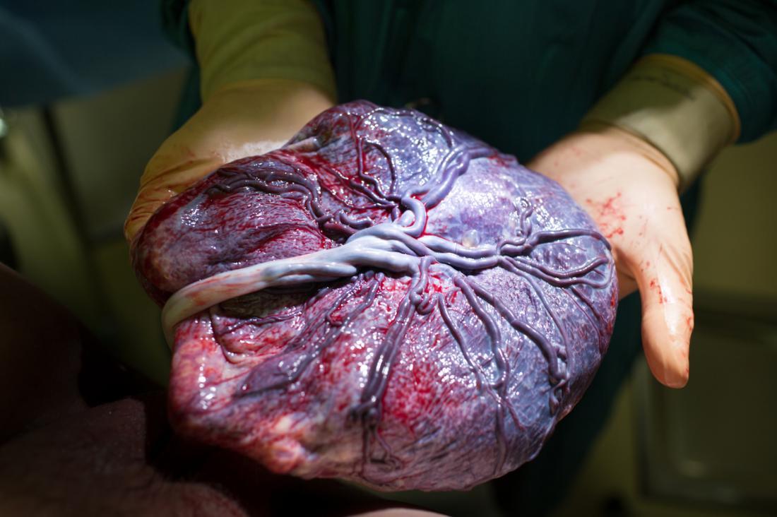 một bác sĩ đang giữ nhau thai