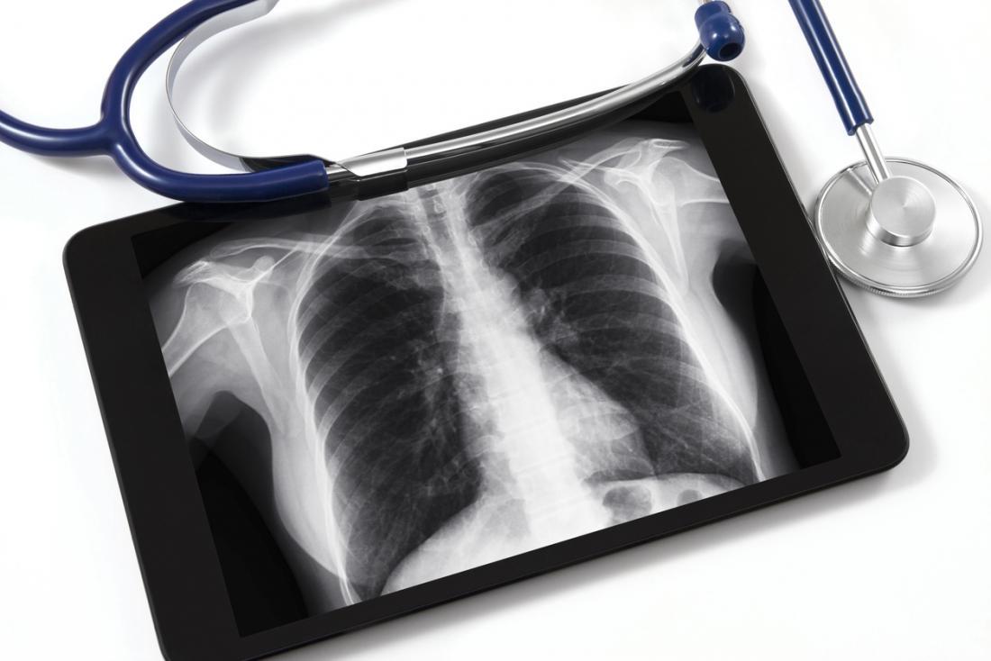 X-quang phổi với ống nghe