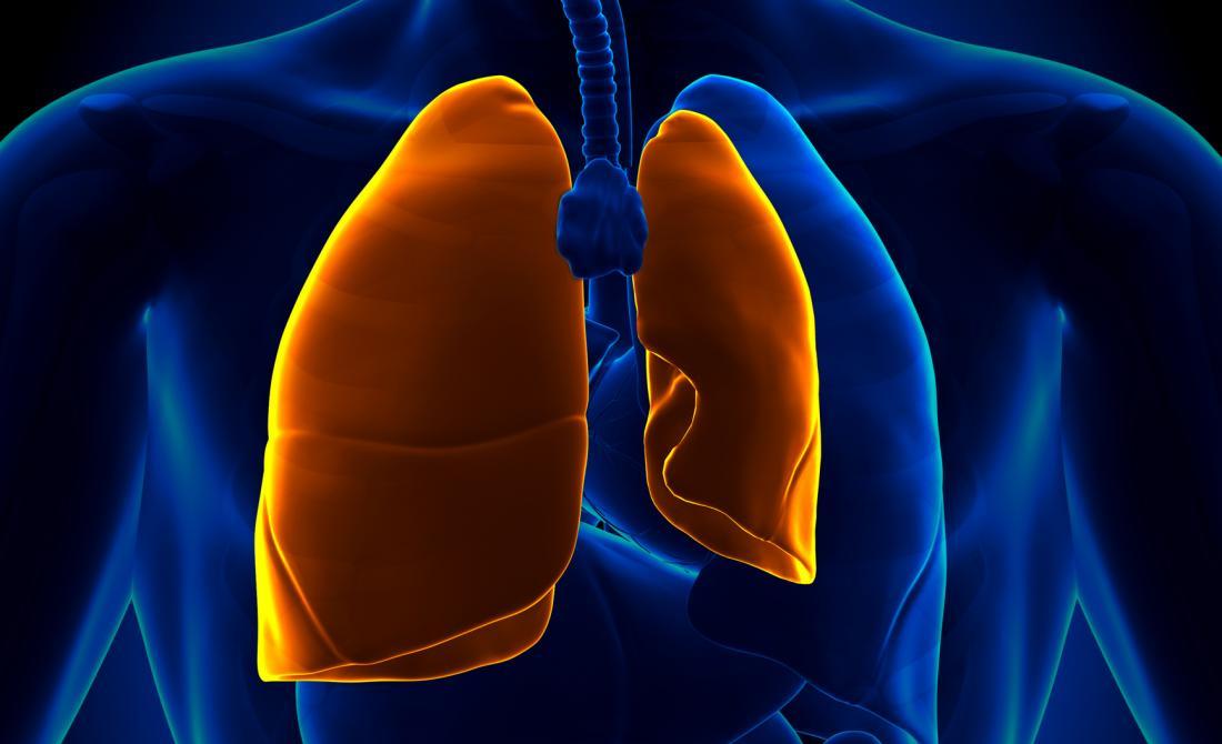 ilustração de um pulmão colapsado