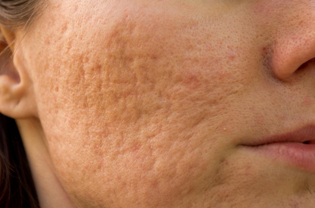 人の頬のにきび傷跡の結果としてポックマーク。