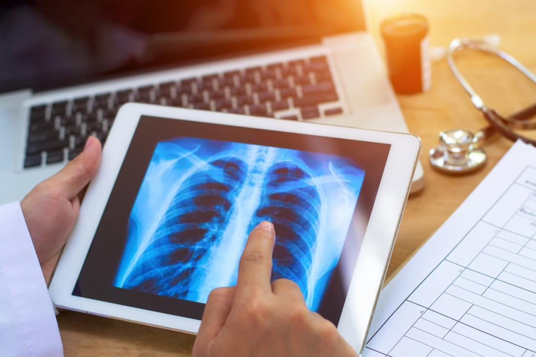 医者、胸を見る、X線、タブレット