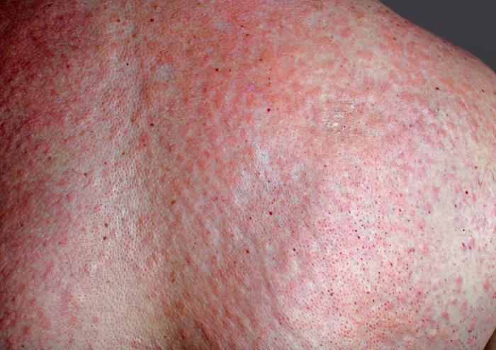 Große Psoriasis Ausschlag über den Rücken.