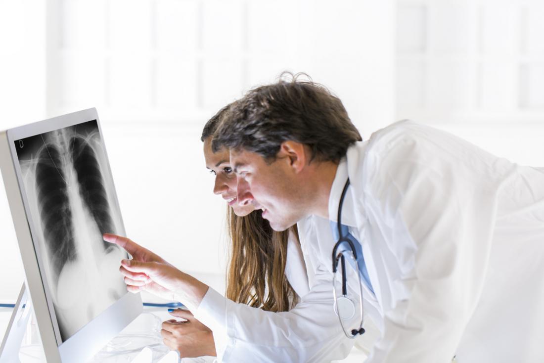Các bác sĩ nhìn vào x-quang phổi.