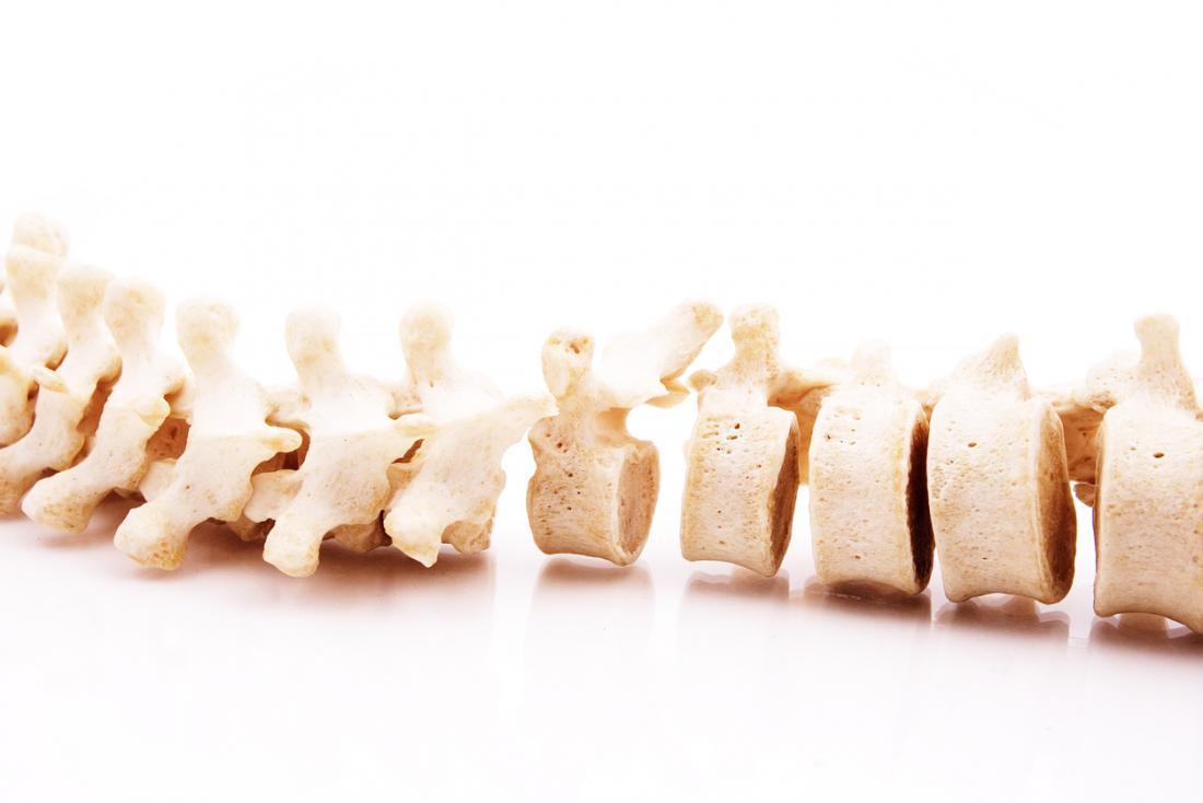 Modèle des vertèbres dans la colonne vertébrale.