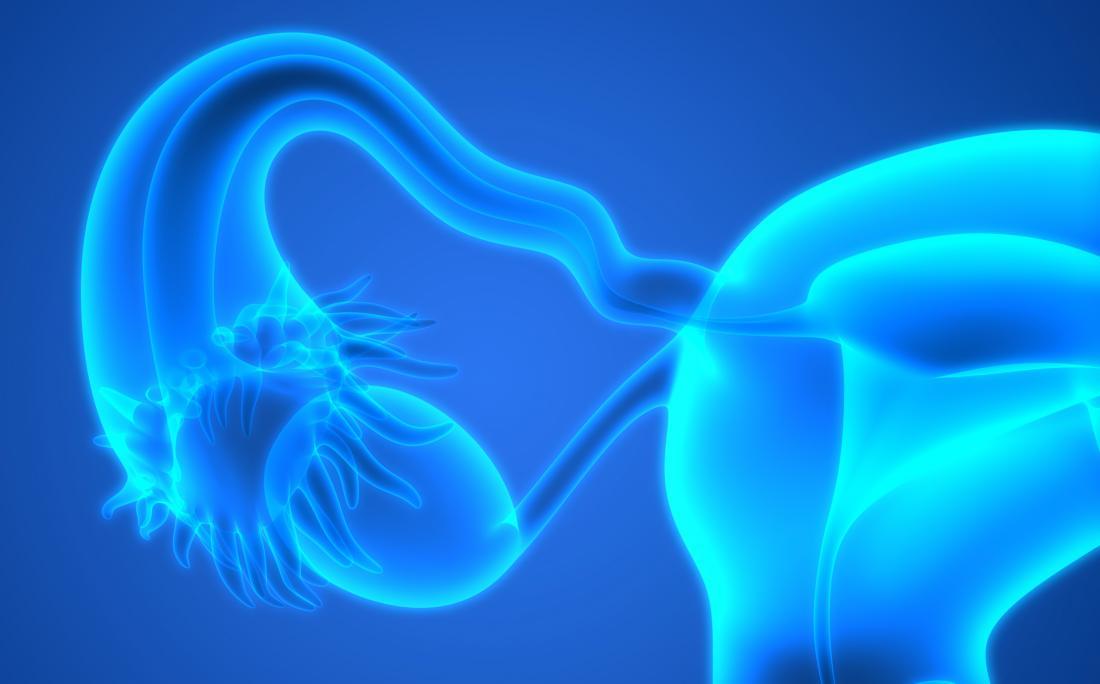 Gros plan rendu 3D des trompes de Fallope et des ovaires qui sont enlevés dans une salpingo-ovariectomie.