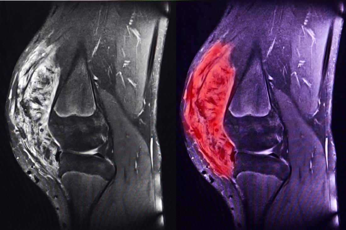 Une IRM du sarcome du genou, montrant la différence de taille et de texture du sarcome et du tissu du genou environnant.