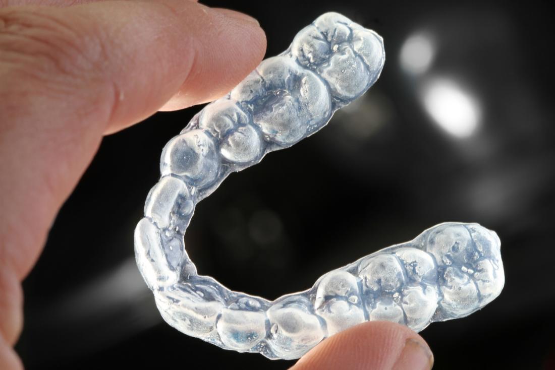 Mundschutz, um das Zähneknirschen zu stoppen
