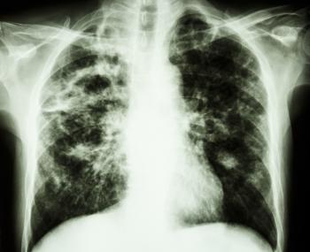 x raggio di fibrosi polmonare