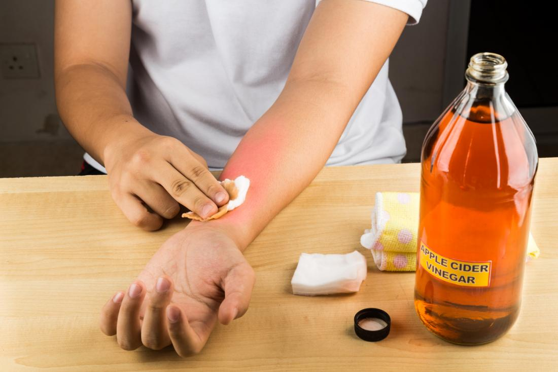 酢は、ウニの刺し傷を治療するために使用され、皮膚に閉じ込められた刺されを解消するのに役立ちます。