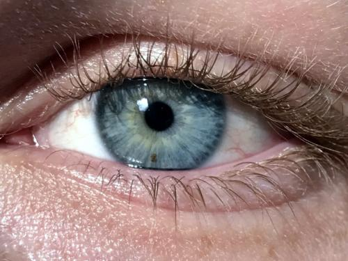 miyoz veya pinpoint pupil. İmaj kredisi: Lucashawranke, (11 Şubat 2018)