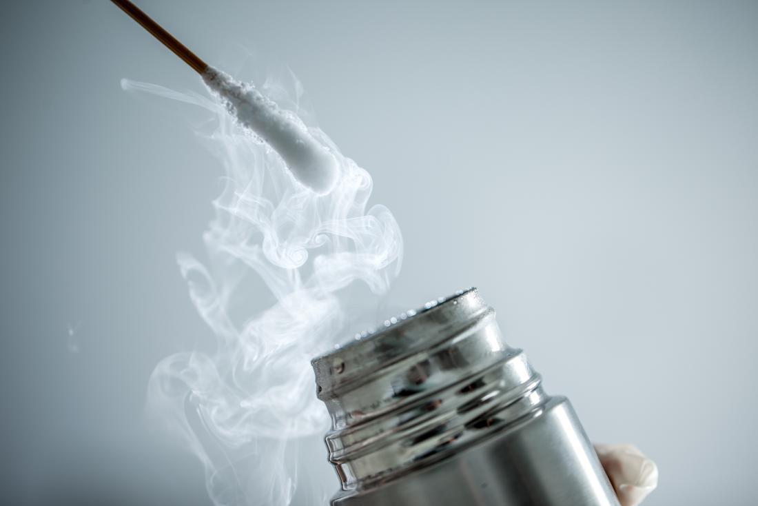 криотерапия, използваща памучен тампон и течен азот