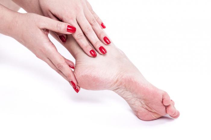 дама, прилагаща крем на крака