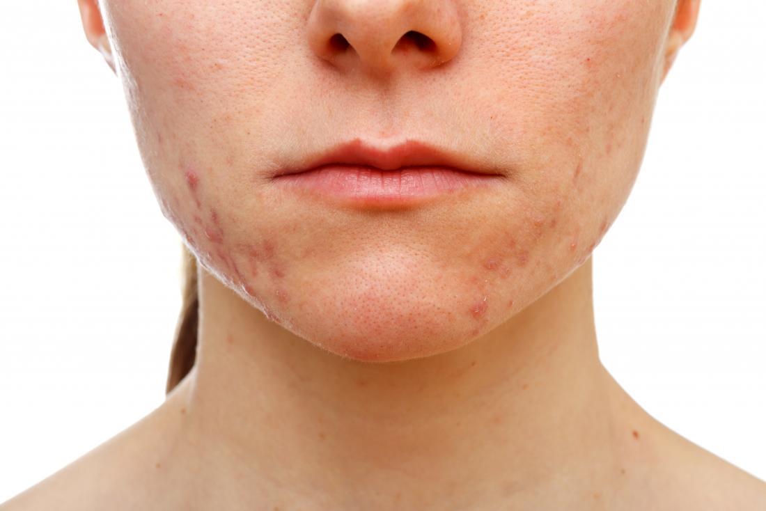 Ragazza con l'acne sulla sua pelle