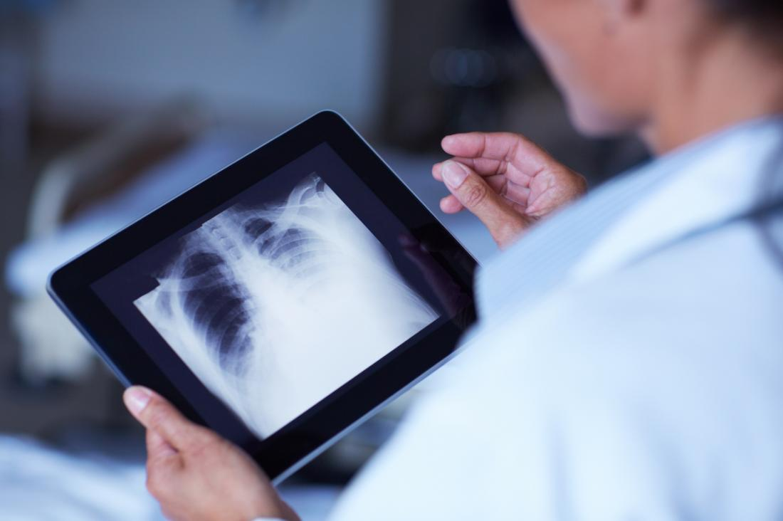 dottore guardando X-Ray