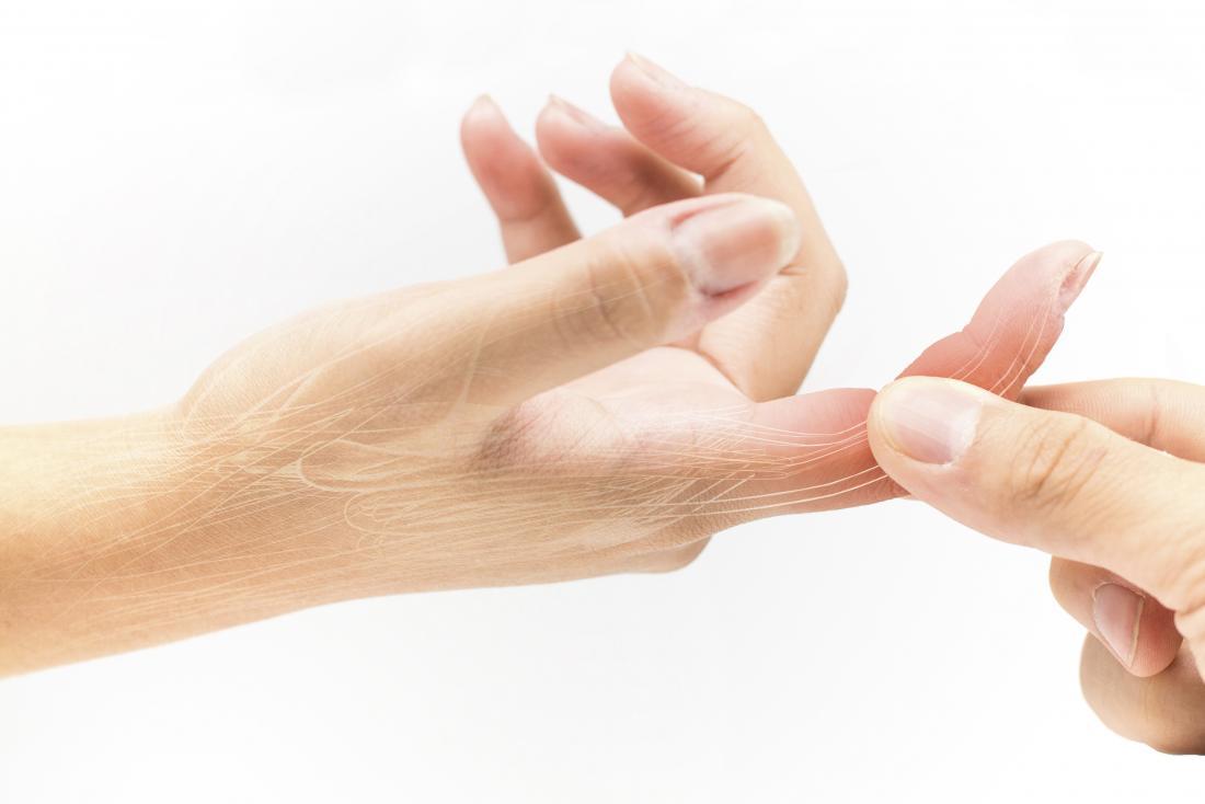 Verstauchter Finger