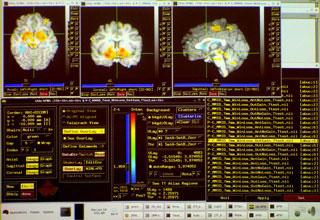 どのように統合失調症が脳に影響を与える