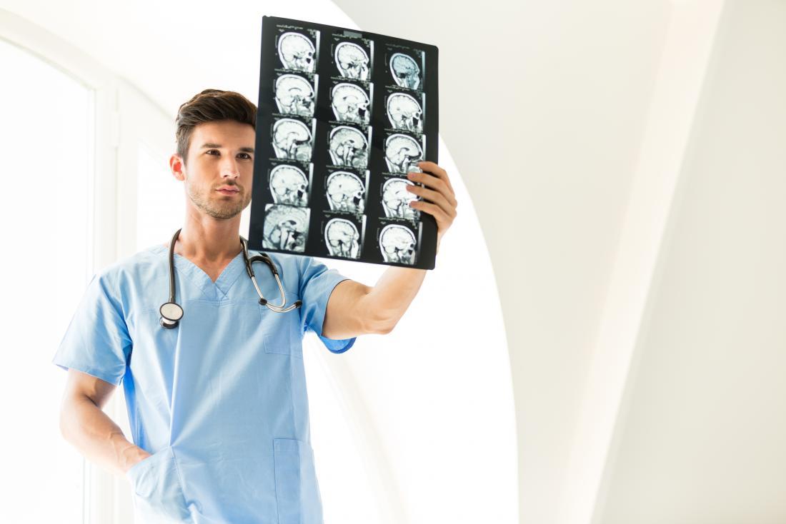 junger männlicher Doktor, der Gehirnscans überprüft