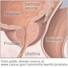 diagrama de próstata