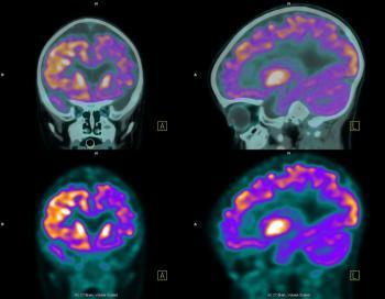 Scansione PET (tomografia ad emissione di positroni) del cervello