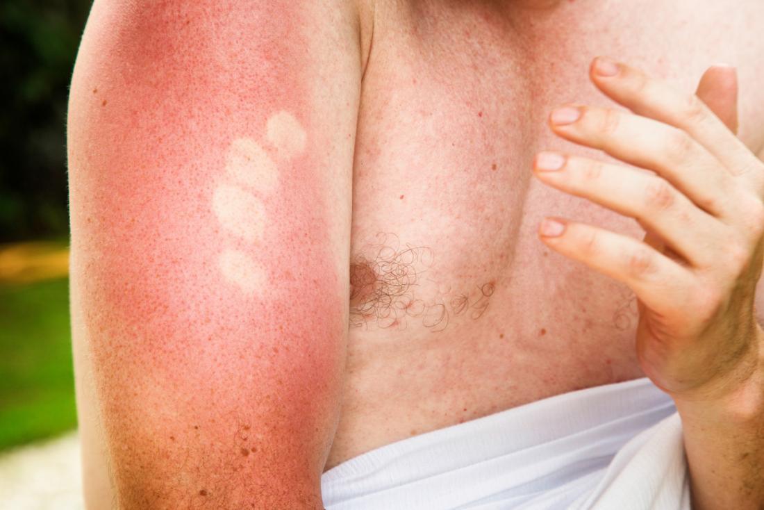 Sunburnは腕を構えています。
