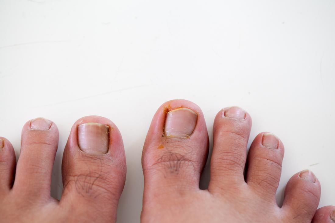 Eingewachsene Fußnägel an Füßen.