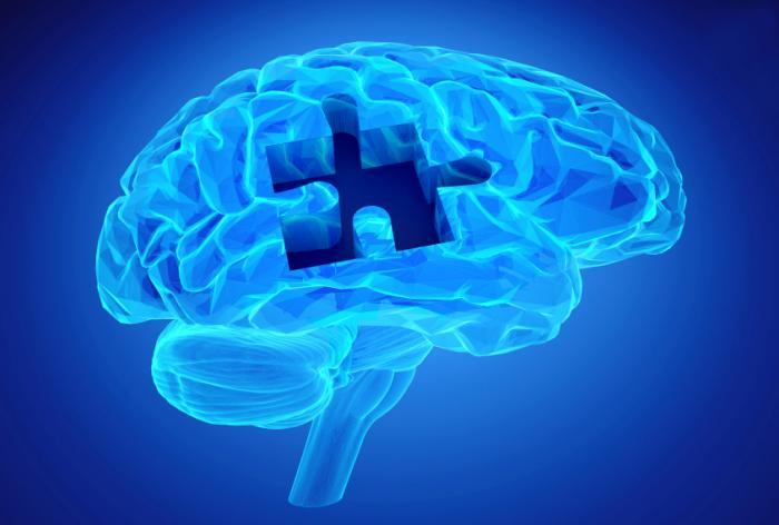 bộ não bị thiếu mảnh ghép