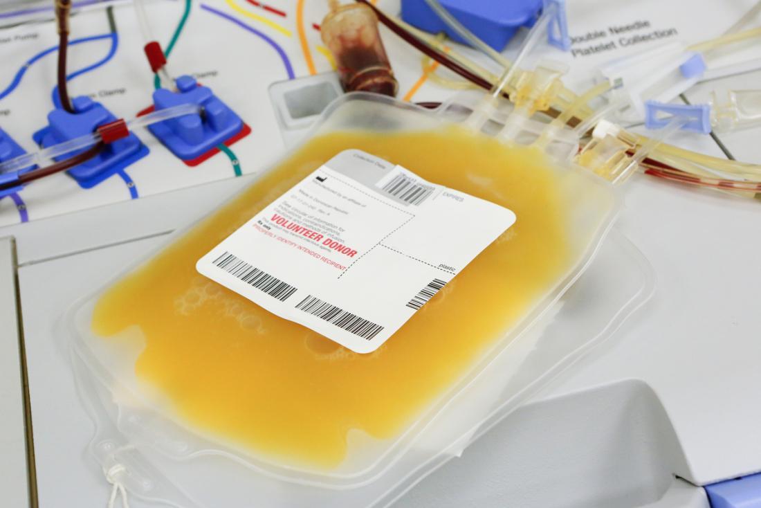 Plasma sanguigno donato