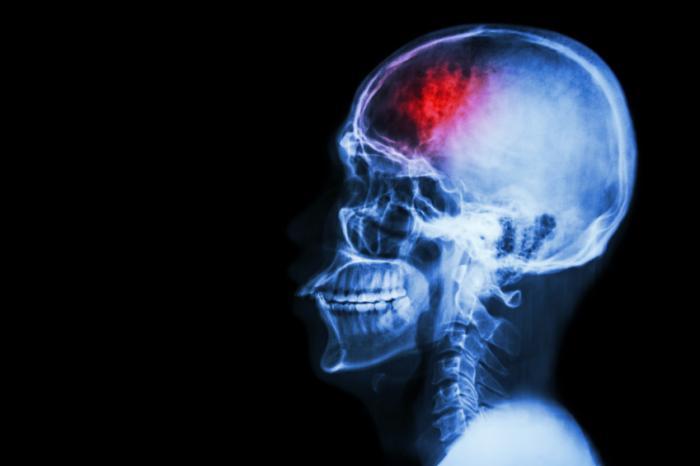 radiografia della persona dopo l'ictus