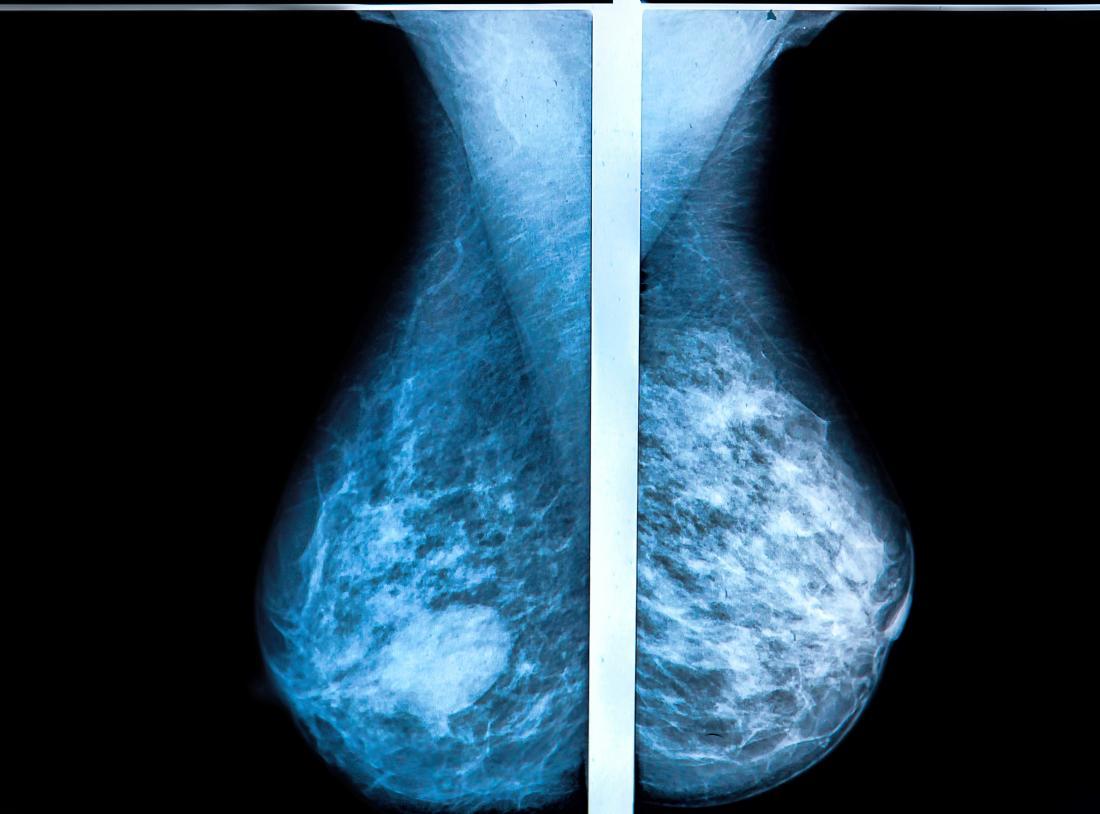 Мамографски изображения.