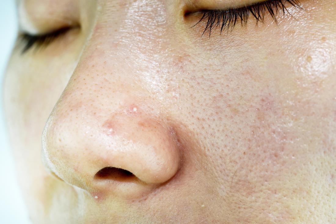 Đóng lên da nhờn của người phụ nữ