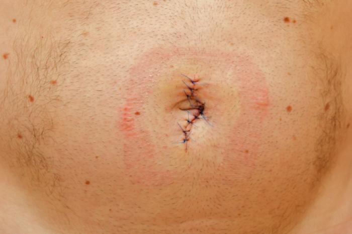 Bauchnabel nach Hernienoperation