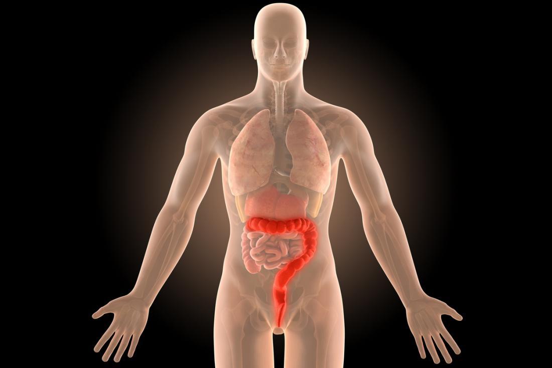 [Diagrama de Colite Ulcerativa]