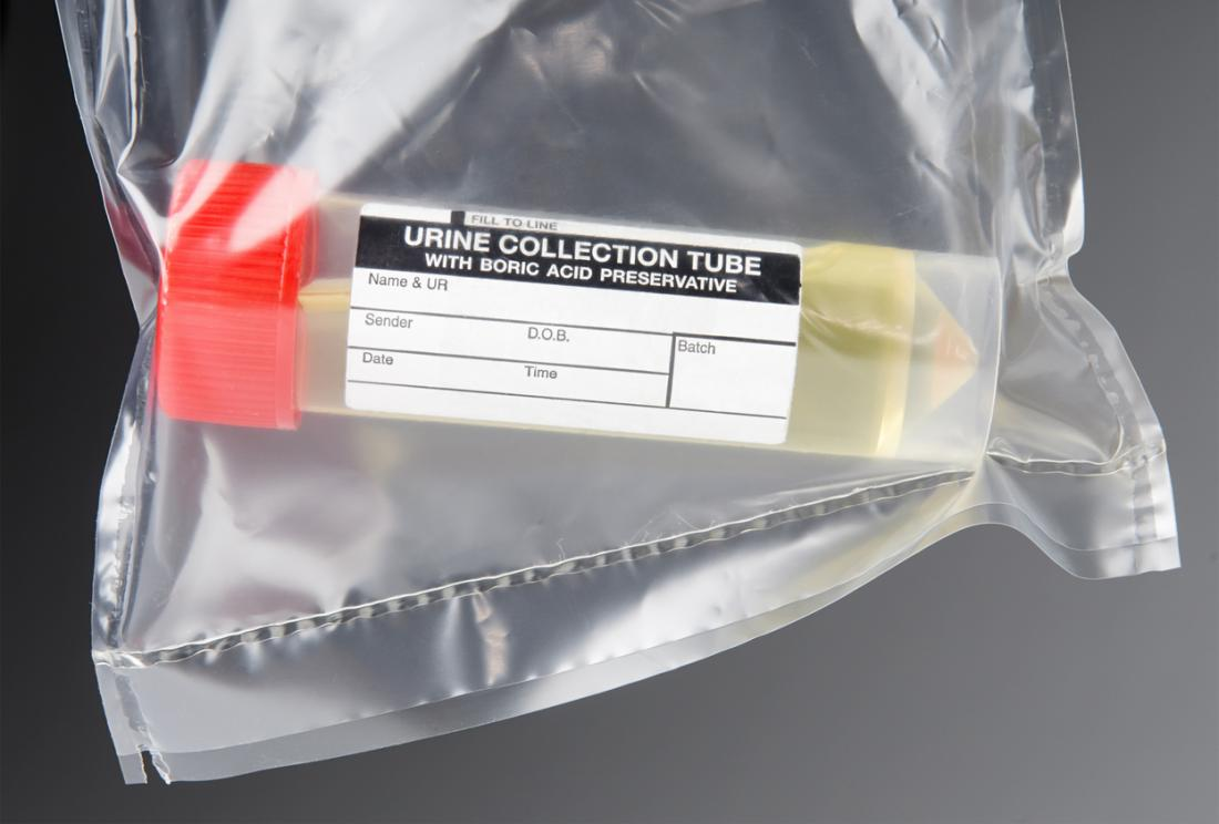 Amostra de urina para um teste em um tubo de coleta, em um saco plástico transparente.