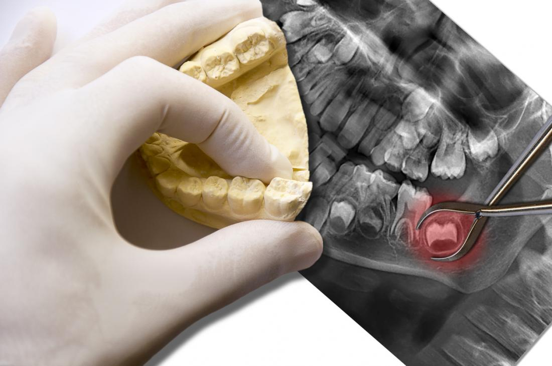 Dentes do siso em um raio-x da boca e uma mão enluvada olhando para um modelo dos dentes inferiores em cima.