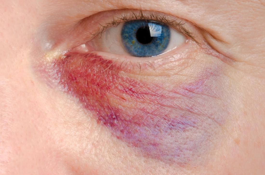 Occhio nero o pelle rossa sotto gli occhi causata dal pool di sangue.