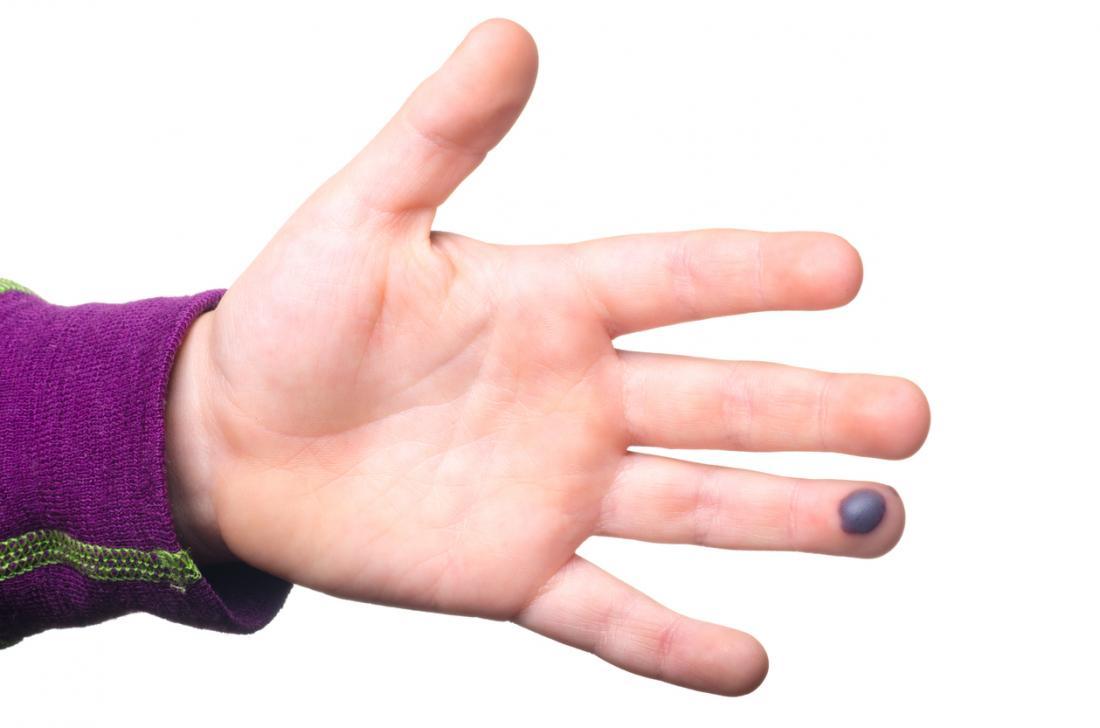 Bolha de sangue na ponta dos dedos de uma pessoa.