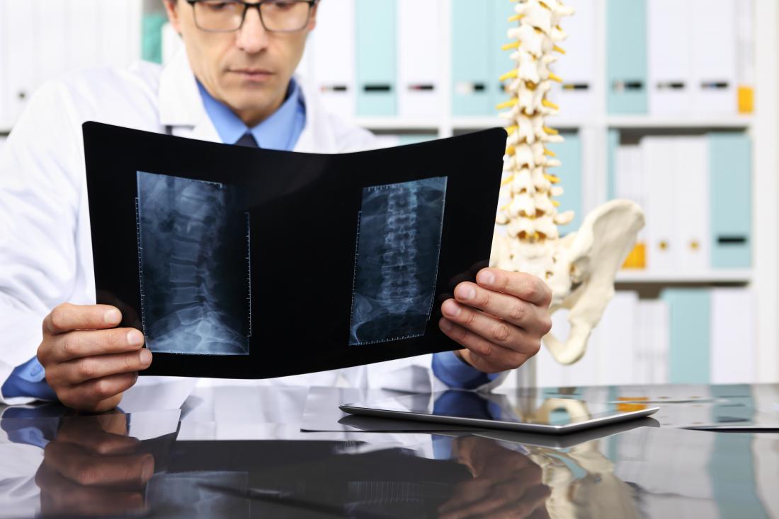 Docteur en regardant la radiographie de la colonne vertébrale dans le bureau, à côté du modèle du squelette humain.