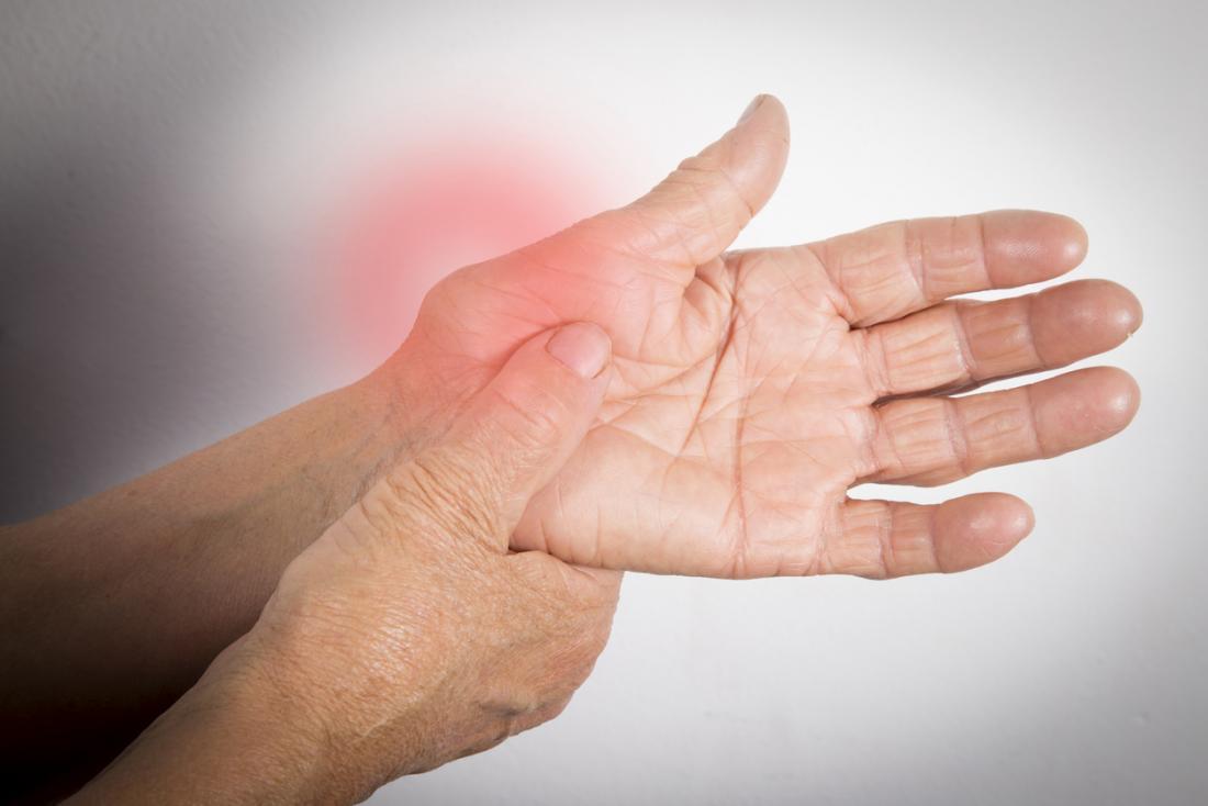 la polyarthrite rhumatoïde dans la main gauche